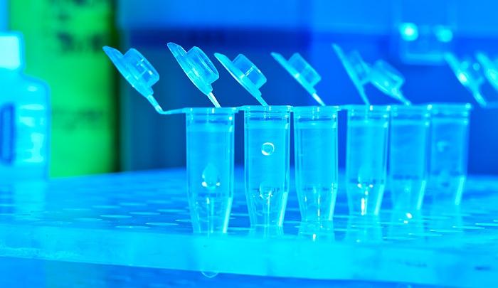 Ярославцам стала доступна комплексная диагностика коронавируса