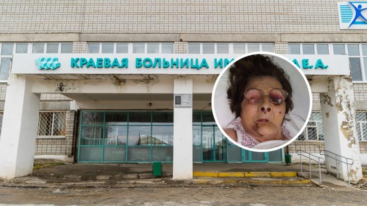 У пациентки больницы Березников после госпитализации появились синяки. Родственники винят врачей