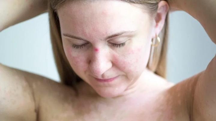 «Потрясающая вещь, случившаяся со мной»: челябинка с псориазом вдохновляет других полюбить свое тело