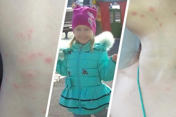 Расчесанные пятна мать заметила на дочери в тот же день, как забрала ее домой из приюта
