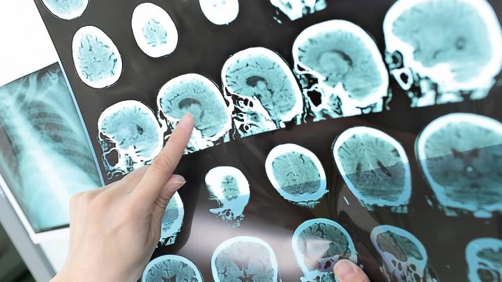 Угрожает молодым и активным: чем опасен рассеянный склероз