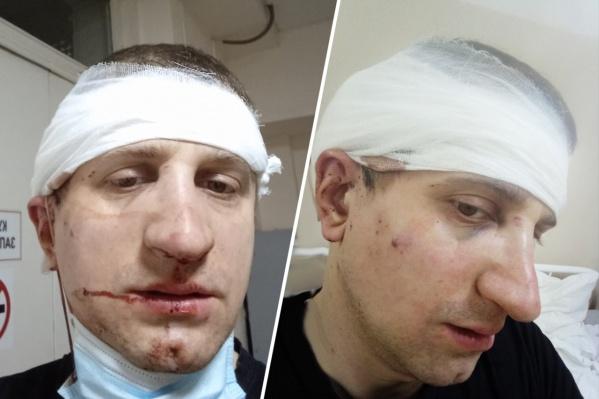 Романа Иванова избили после небольшого ДТП