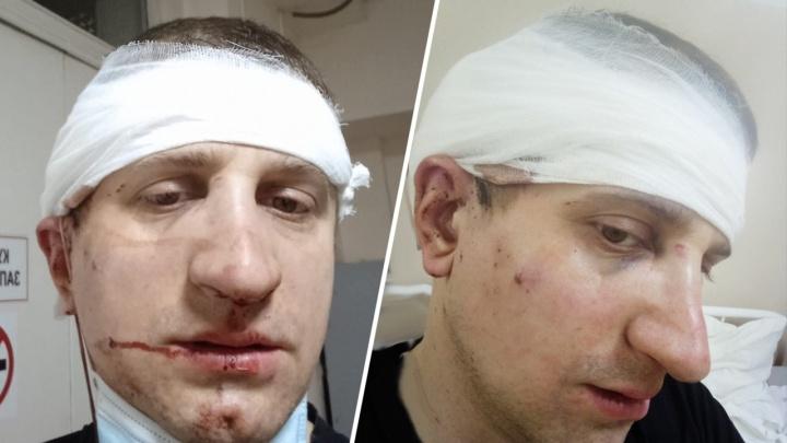 «Всё в крови, брат без сознания»: пассажир «Газели» напал с дубинкой на водителя «Хонды» и его мать после ДТП