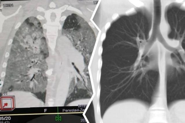 Слева — поражённые тяжёлой пневмонией лёгкие