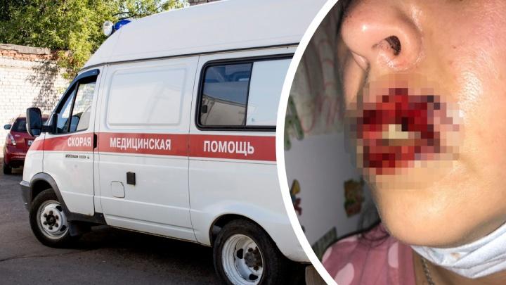 «Внезапно вцепилась в лицо»: в Ярославле бойцовская собака откусила хозяйке губы