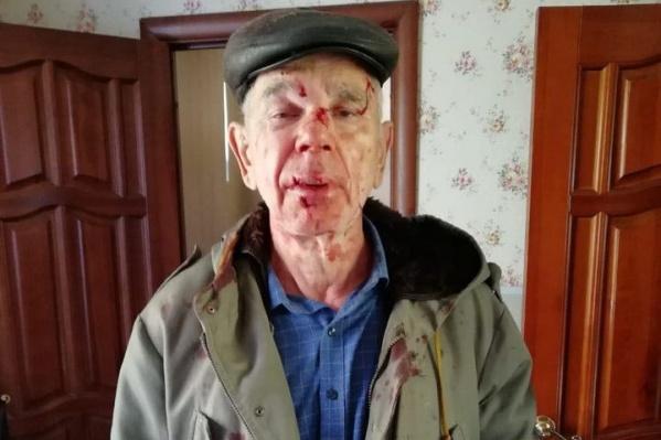 Ивана Галухина беспричинно избили на улице во время прогулки с собакой