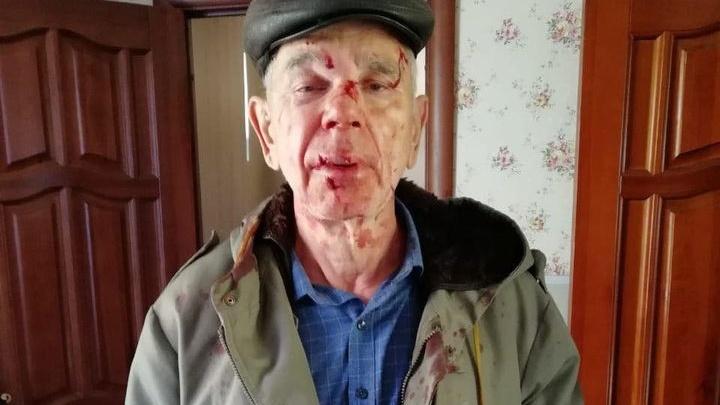 «Сегодня он напал на мужчину, а завтра пойдет убивать в Сбербанк?»: в Волгограде жестоко избили пенсионера