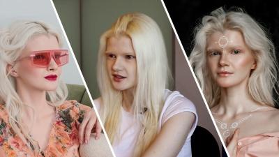 «Боже, это альбинос?»: правила жизни абсолютно «белой» красотки — на неё показывают пальцем и признаются в любви