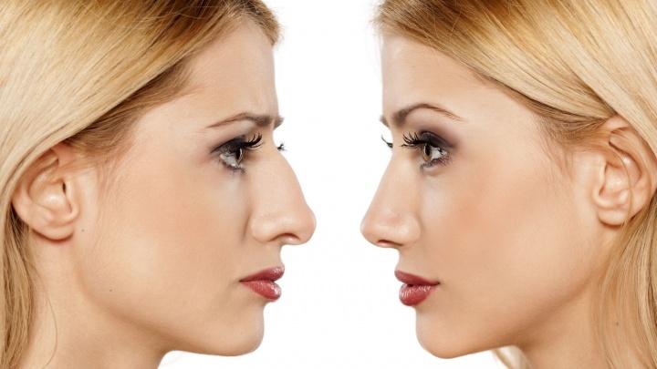 Комар носа не подточит: ринопластика не только делает пациентов красивее, но и улучшает дыхание