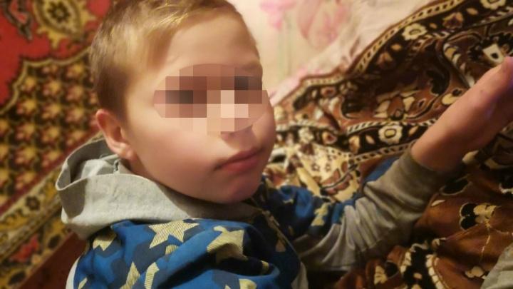 Пострадавшему от взрыва петарды 12-летнему Саше удалят глаз. Второй — попытаются спасти