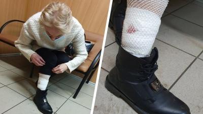 «Натравим еще раз!»: в Ярославле бойцовый пес напал на женщину