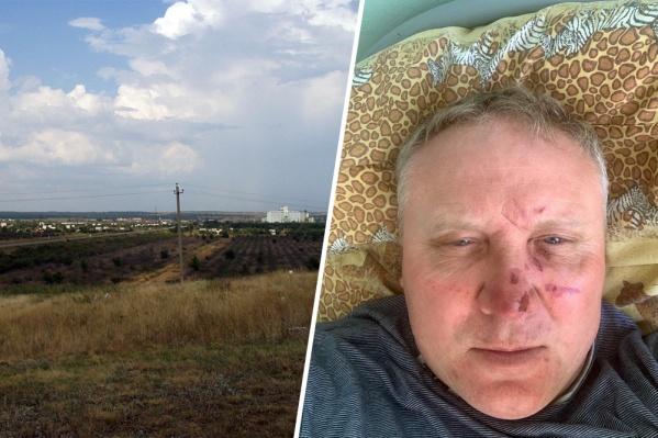 У фермера после нападения сотрясение мозга и ушибы