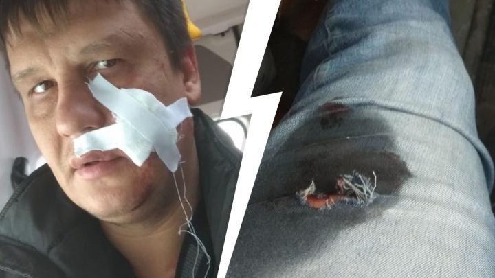 «Выстрелил в лицо». Новосибирец оказался в больнице после конфликта с бизнесменом