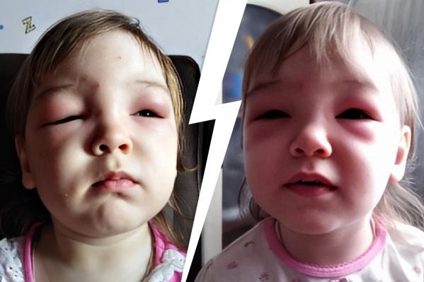 Аллергическая реакция организма — отёк