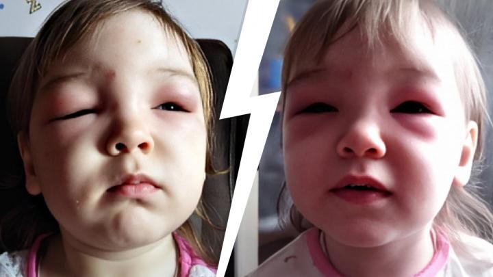 У маленькой тюменки сильно отекло лицо после укуса мошки