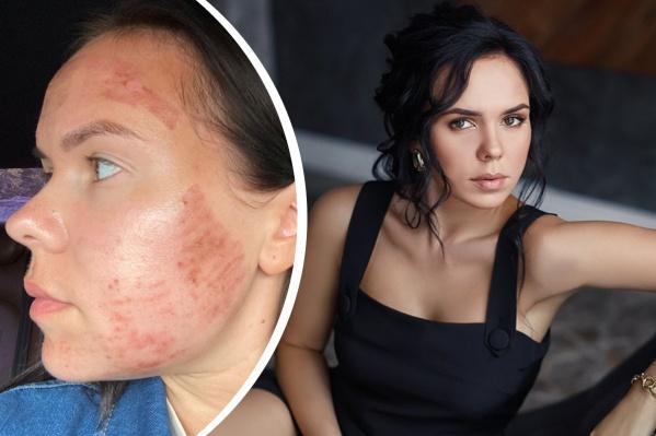 Девушка обратилась к косметологу, чтобы избавиться от небольших проблем с кожей<br>