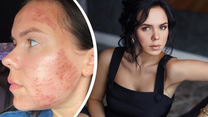 «Теперь всё время в маске»: после посещения клиники эстетики девушка получила ожог во всё лицо