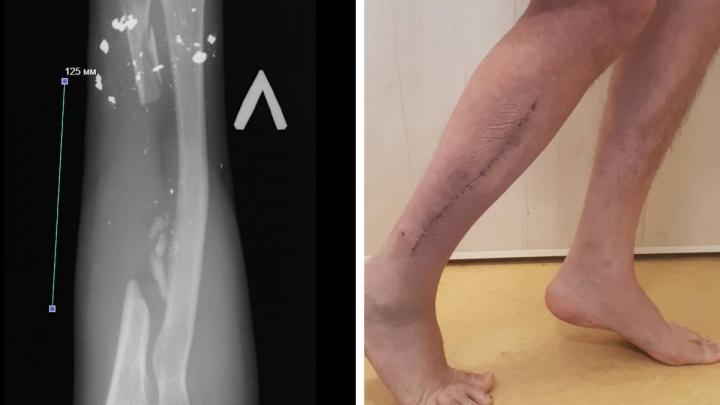 В Красноярске мужчине пересадили часть кости ноги в руку, чтобы сохранить функции конечности