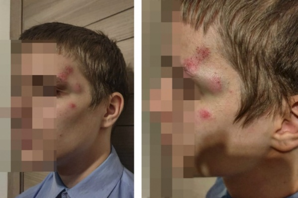 17 февраля 2020 года неподалёку от площади Ленина 14-летнего сына знаменитого правозащитника Ростислава Антонова избил мужчина