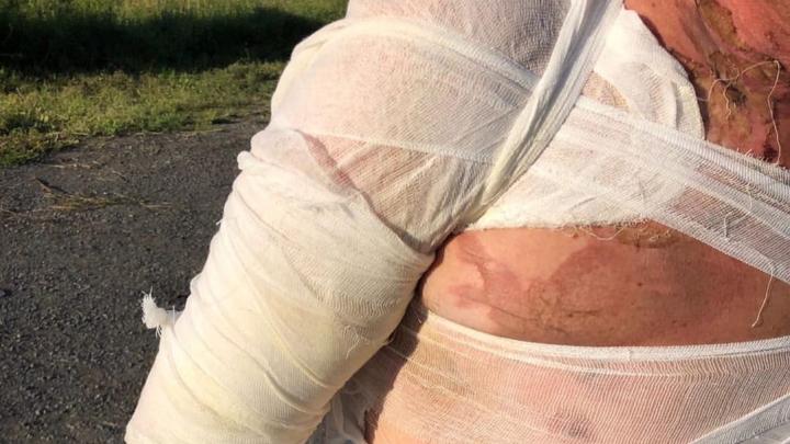 «Выгнали мужчину с ожогами»: кемеровчанин возмутился работой больницы
