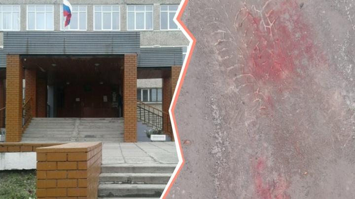 «Били ногами, прыгали на голове»: мама избитого на Урале подростка — о произошедшем