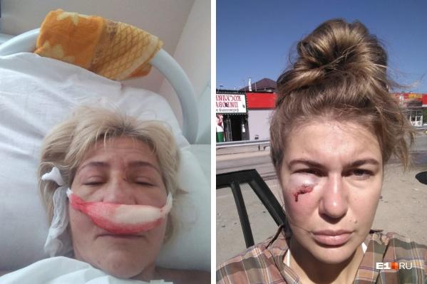 В драке женщине сломали нос, а у ее дочери — гематома