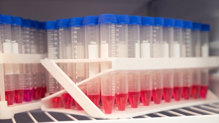 В правительстве объяснили резкое снижение числа тестов на COVID-19 в Ростовской области