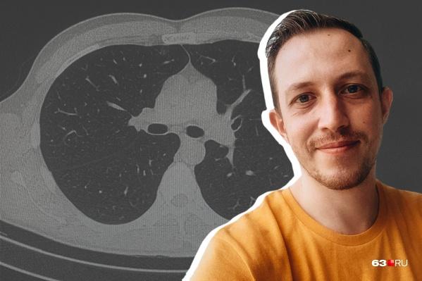 Белые пятна на компьютерной томографии— это области поражения лёгких
