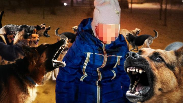На Урале экс-чиновника будут судить из-за собаки, которая укусила за лицо трехлетнюю девочку