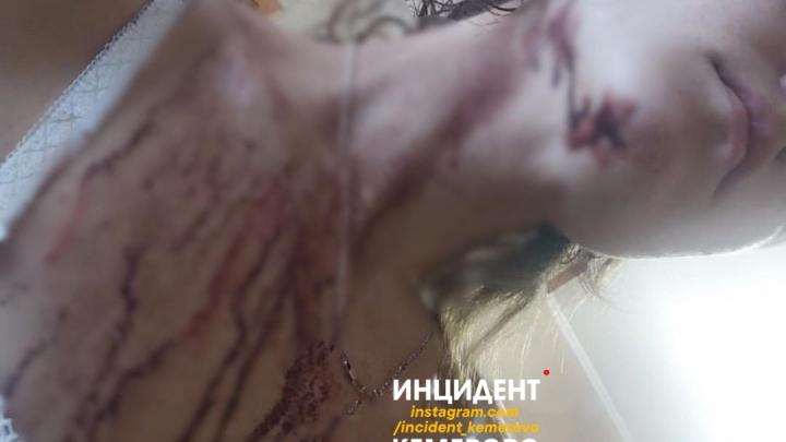«Еле как вырвалась и убежала»: в Кемерово мужчина порезал ножом свою 26-летнюю соседку