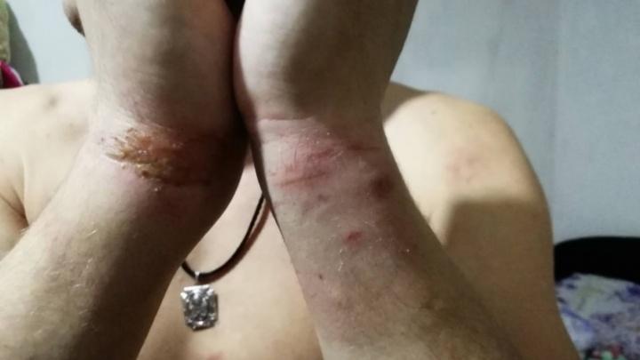 Тагильчанин, которого пытали в отделе полиции, смог добиться пятикратного увеличения компенсации