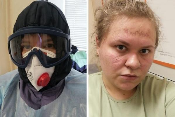 Наталья Рузова работает санитаром в инфекционной больнице. На фото справа — так ее лицо выглядит после многочасового ношения маски
