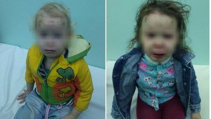 «Это они так играли»: в Волжском молодую мать подозревают в избиении трех маленьких дочерей