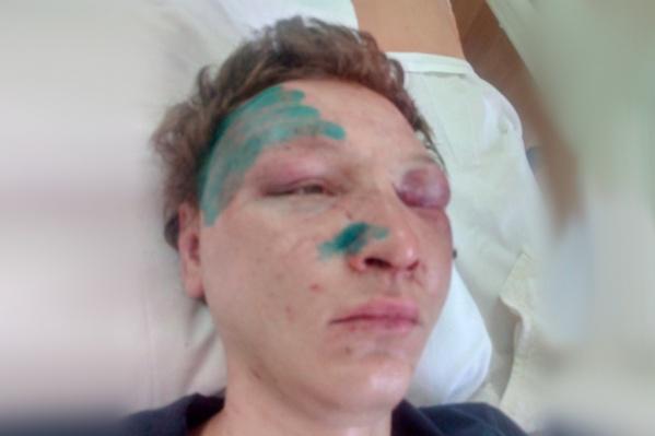 В результате нападения 25-летний парень получил множество травм