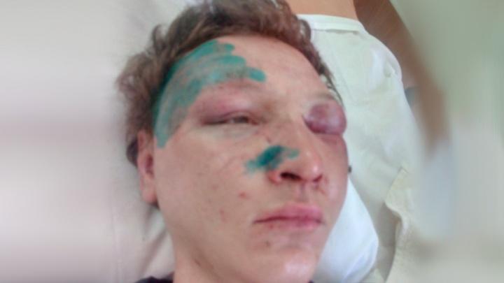 После уличного нападения на страдающего аутизмом челябинца возбудили уголовное дело