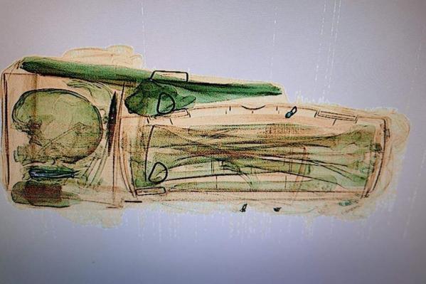 Просвечивая багаж на ленте-транспортере, сотрудники вокзала обнаружили кости
