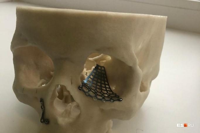Титановая пластина останется в черепе у Антона Ефремова до конца жизни