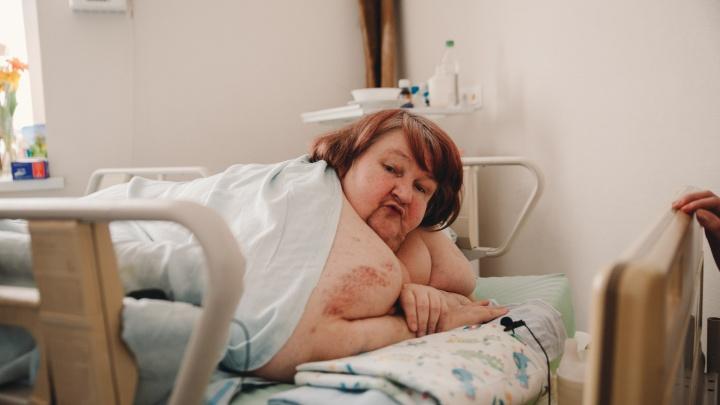 Самая тяжелая тюменка могла умереть из-за проблем с сердцем