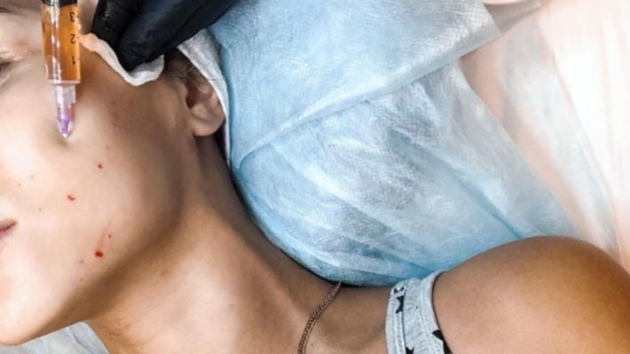 Деньги на ветер: 5 процедур красоты, которые давно устарели, но их всё равно предлагают косметологи