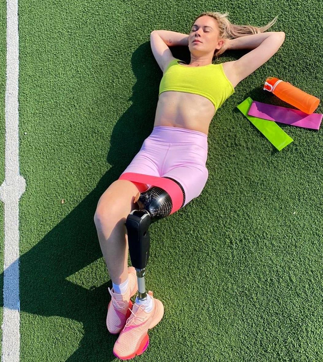 Девушка, как и раньше, продолжает активно заниматься спортом, причем теперь это не просто личная воля— это необходимость, так как протез очень тяжелый, и чтобы его носить, нужно быть в отличной физической форме