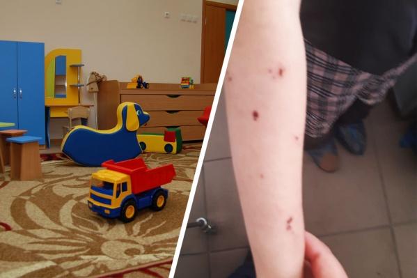 Такие следы обнаружили на коже одной из девочек. В детсаду уверены, что это следы от укусов насекомых