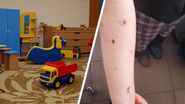 В Новосибирске двум сёстрам запретили ходить в детский сад из-за укусов загадочных насекомых