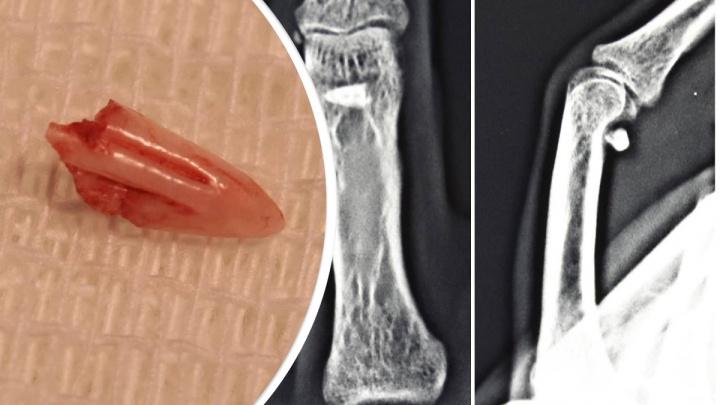 Девушке из пальца удалили зуб кота, который тот оставил, когда укусил ее