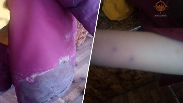 Бездомные собаки в «Солнечном» напали на ребенка около школы