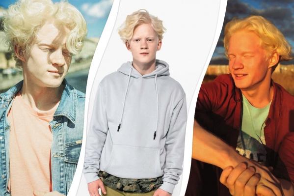 Иван отмечает, что не полностью является альбиносом — например, пигмент в глазах у него есть<br>