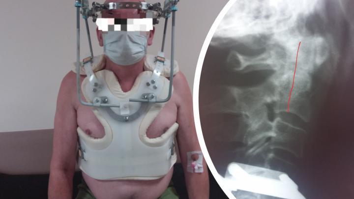 Мужчина упал со стремянки и через 2 недели пришел к врачам с головной болью. С такой травмой люди обычно умирают