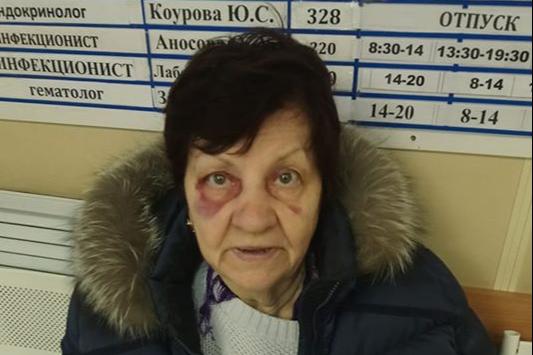 Также женщина разбила лицо и нос