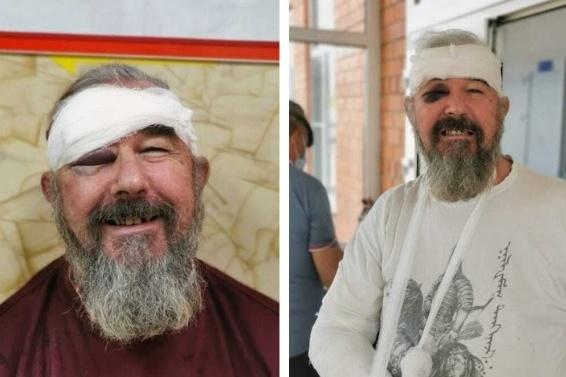 Сергей Зигунов в момент нахождения в больнице