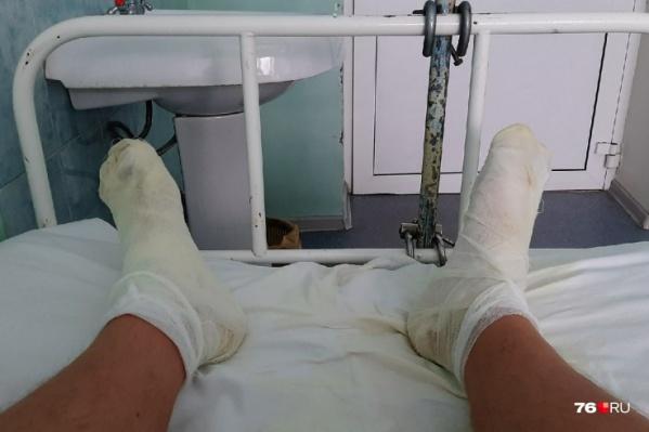Рыбинец с ожогами ног угодил в больницу имени Пирогова<br>