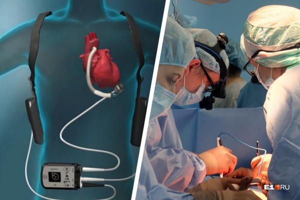 В Свердловской областной больнице № 1 выполнили первую в России имплантацию системы вспомогательного кровообращения ребенку. Они заменили ему левый желудочек сердца, который не качал кровь